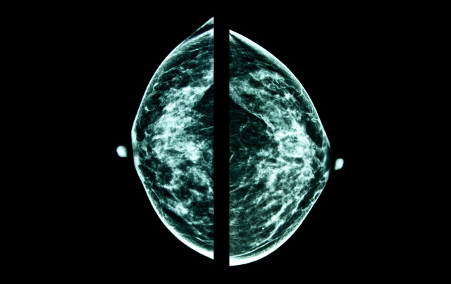 Breast Cancer Screening in an Era of Personalized Regimens
