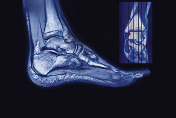 MRI and Forefoot Pain